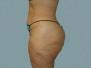 Buttocks Patient 2