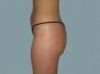 Buttocks Patient 6