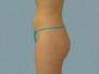 Buttocks Patient 7