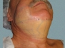 Facial and Neck Patient 2