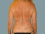 Female Back Patient 1