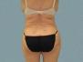 Female Back Patient 5
