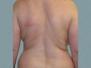 Female Back Patient 8