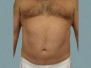 Male Breast Patient 3