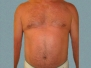 Male Breast Patient 4