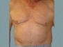 Male Breast Patient 7