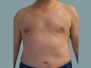 Male Breast Patient 9