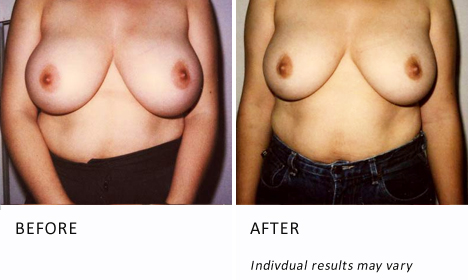 Breast Reduction Surgery Patient1 Ba