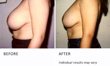 Breast-reduction-surgery-patient1-view-side-ba