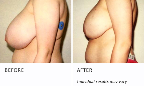 Breast-reduction-surgery-patient2-view-side-ba