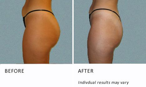 Buttocks Patient1 View Side Ba