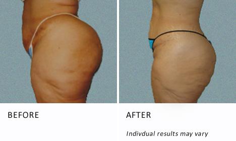 Buttocks-patient2-ba
