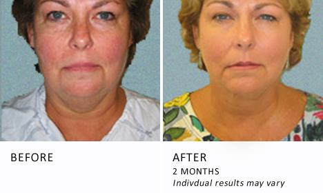 Face-neck-patient1-view-front-ba