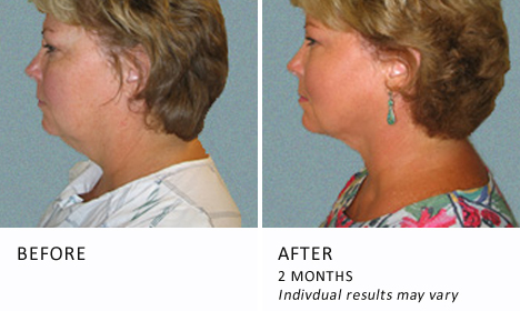 Face & Neck Lipo Before and After