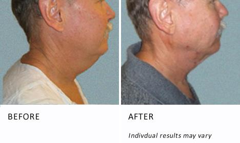 Face-neck-patient2-view-profile-ba