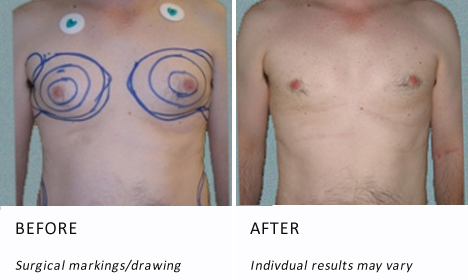 Male-breast-patient1-view-drawing-ba