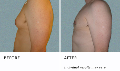 Male-breast-patient1-view-side-ba