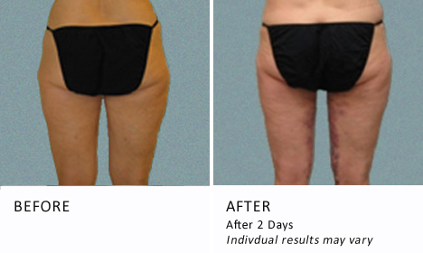 Inner-thighs-patient2-view-back1-ba