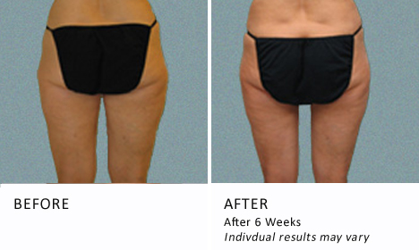 Inner-thighs-patient2-view-back2-ba