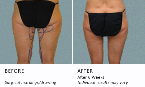 Inner-thighs-patient2-view-drawning1-ba