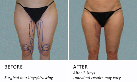 Inner-thighs-patient2-view-drawning2-ba