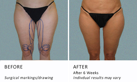 Inner-thighs-patient2-view-drawning3-ba