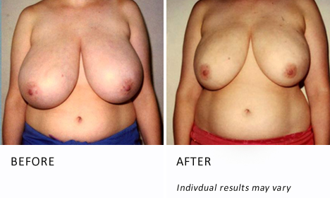 breast-reduction-surgery-patient2-ba