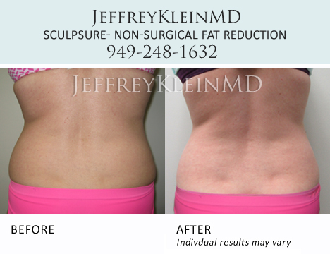 Jeffklein-sculpsure-abs-female-pa4