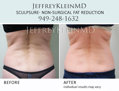 Jeffklein Sculpsure Back RH