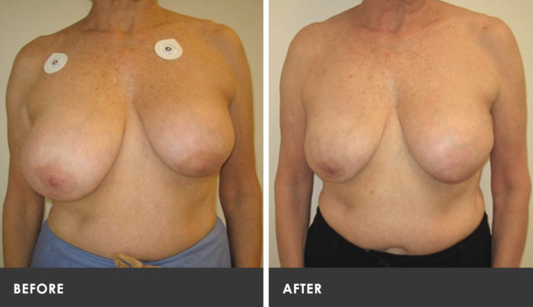 Atlanta breast reduction scarless