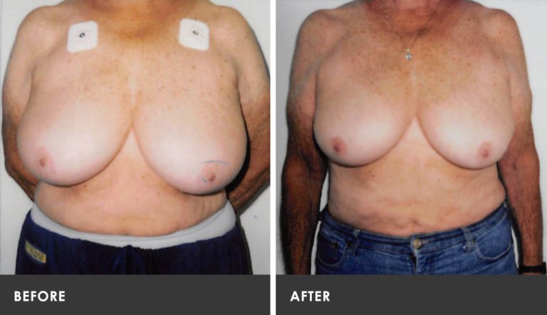 Nj scarless breast reduction