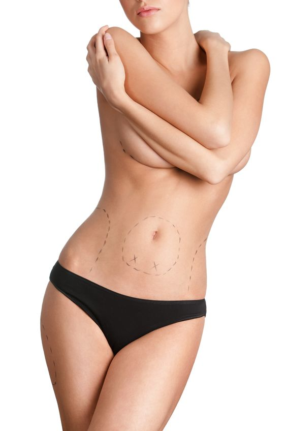 Cosmetic Surgery And Liposuction Trends For 2017: A Look Ahead