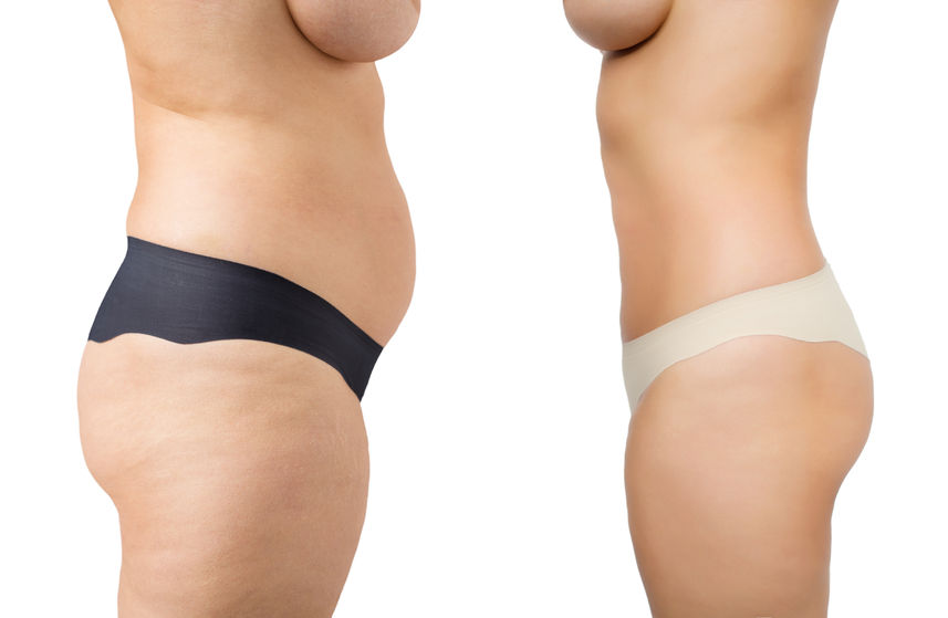 Sculpsure Body Contouring Vs Liposuction