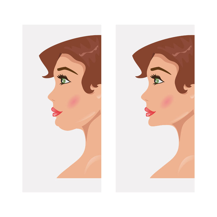 Kybella Vs. Liposuction