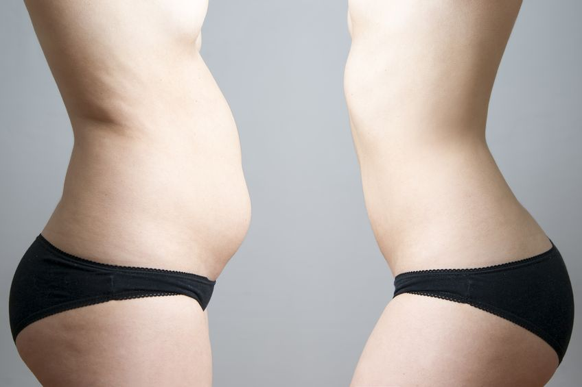 How SculpSure Body Contouring Can Boost Your Self-Esteem - KleinLipo -  Liposuction Surgery