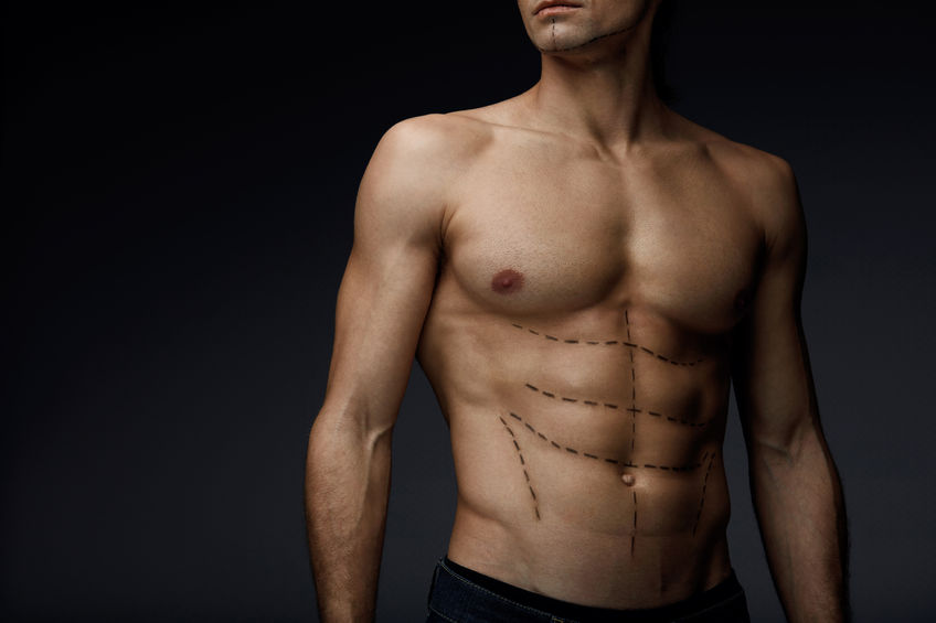 How Liposuction Can Help Men Look Their Best