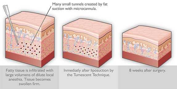 What Are The Benefits Of Tumescent Liposuction?