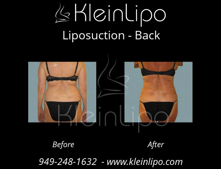 Liposuction Back 2 27 2018 18 08 29