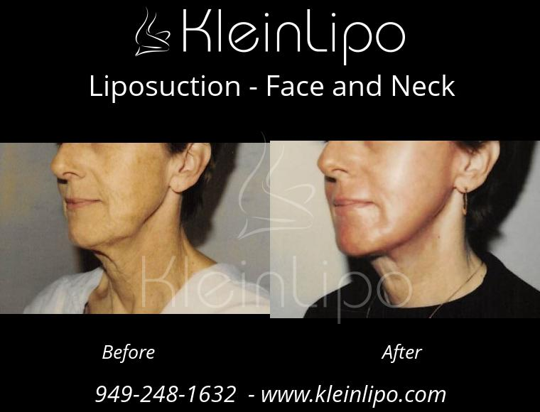 Liposuction FaceandNeck 2 28 2018 11 42 48