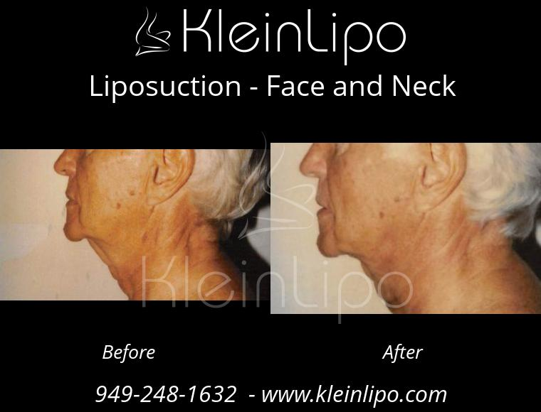 Liposuction FaceandNeck 2 28 2018 11 42 51
