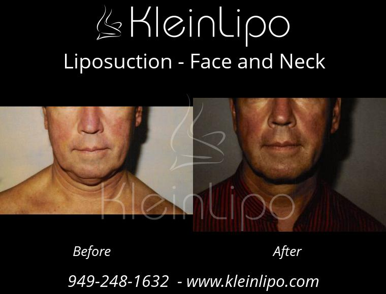 Liposuction FaceandNeck 2 28 2018 11 48 09