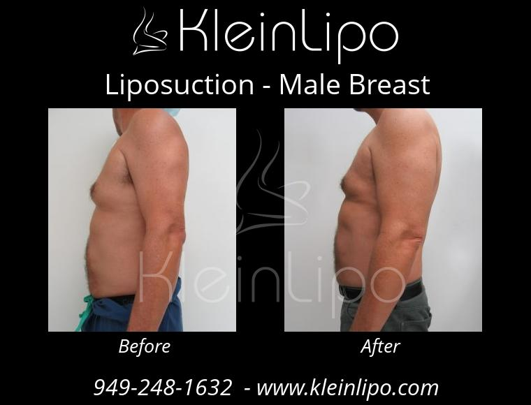 Liposuction MaleBreast 2 27 2018 17 53 14