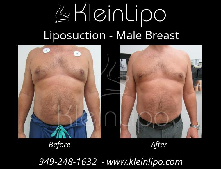 Liposuction MaleBreast 2 27 2018 17 53 18