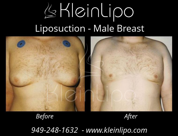 Liposuction MaleBreast 2 27 2018 17 53 23