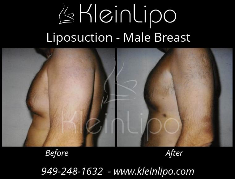 Liposuction MaleBreast 2 27 2018 18 41 30