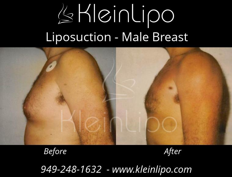 Liposuction MaleBreast 2 27 2018 18 41 31