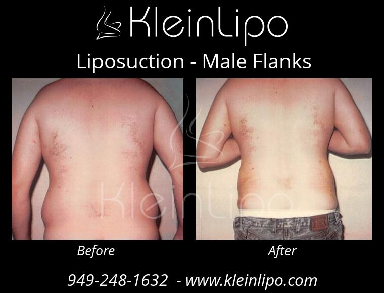 Liposuction MaleFlanks 2 27 2018 19 17 07
