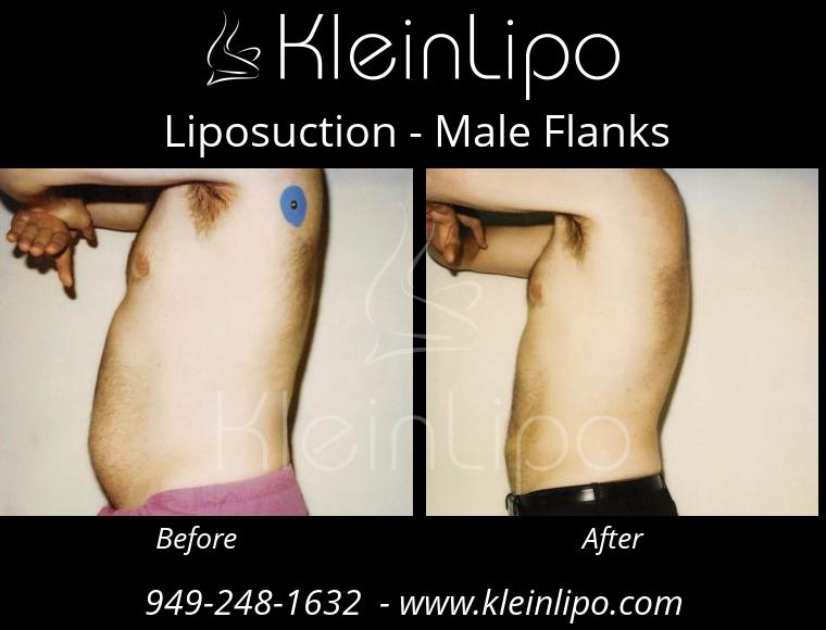 Liposuction MaleFlanks 2 27 2018 19 17 14