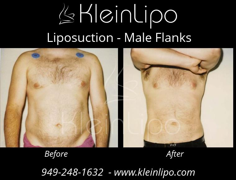 Liposuction MaleFlanks 2 27 2018 19 17 17