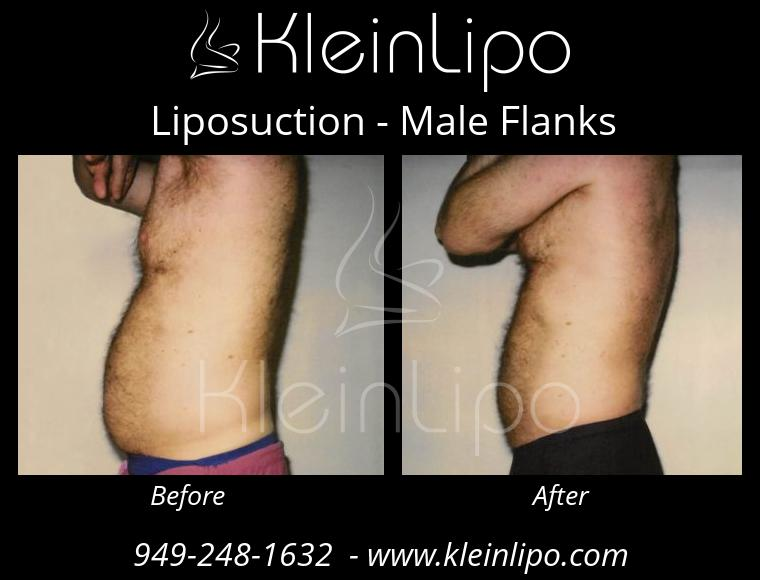 Liposuction MaleFlanks 2 27 2018 19 17 20